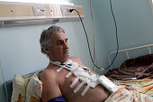 Pensive man in a hospital ward after heart surgery