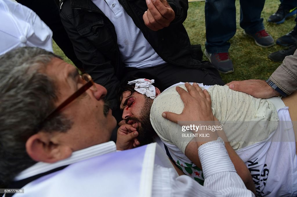 People assist a protestor bleeding from his face after he was injured during clashes with anti-riot police during a May Day rally in Bakirkoy, a district of Istanbul, on May 1, 2016. Turkish labour activists and leftists marked the annual May Day holiday, with thousands of security deployed and bracing for trouble after the authorities refused to allow protests in central Taksim Square. / AFP / BULENT