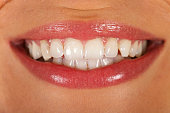 Close up picture of a young woman's beautiful denture