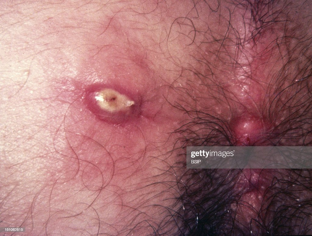 Perianal Abscess Pictures Getty Images