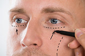 Close-up Of Person's Hand Drawing Correction Line With Pen Near Man's Eyes