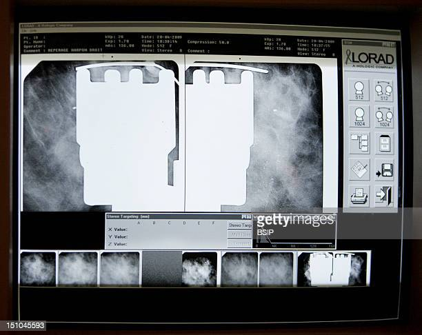 Photo Essay At The Department Of Medical Imagery Of The Diaconesses Hospital In Paris France Set Up Of Marks Under Stereotaxy Location Of...