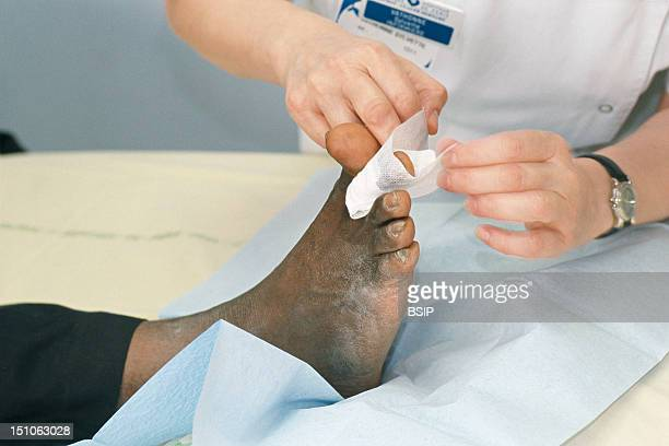 Photo Essay From Hospital Bichat Claude Bernard Hospital In Paris France Out Patient Hospitalization Caring For Foot