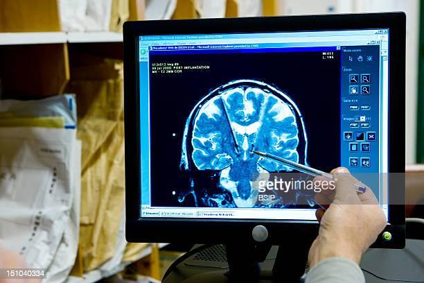 Photo Essay From Hospital Grenoble University Hospital Michallon Hospital Department Of Neurology Unit 'Movement Disorder' Mri Of A 30 Year Old...