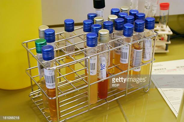 Photo Essay From Hospital Rambouillet Hospital Analytic Laboratory Bacteriological Sector Lab Table Tubes Of Bacterial Culture In Liquid Or Semi...