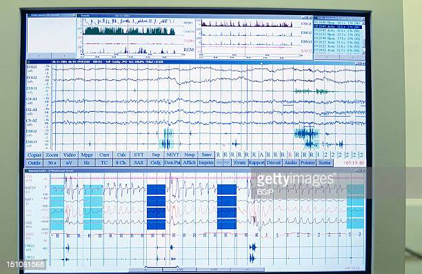 Photo Essay From Hospital Sleep Unit At The Salengro Branch Of The Lille University Hospital Center Neurology Unit Computer Screen Read Out Of Data...