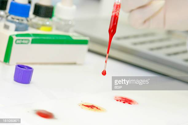 Photo Essay From Laboratory Determination Of Blood Group Abo On Plate Research Of Erythrocyte Antigens Abo Grouping There Is An Agglutination Red...