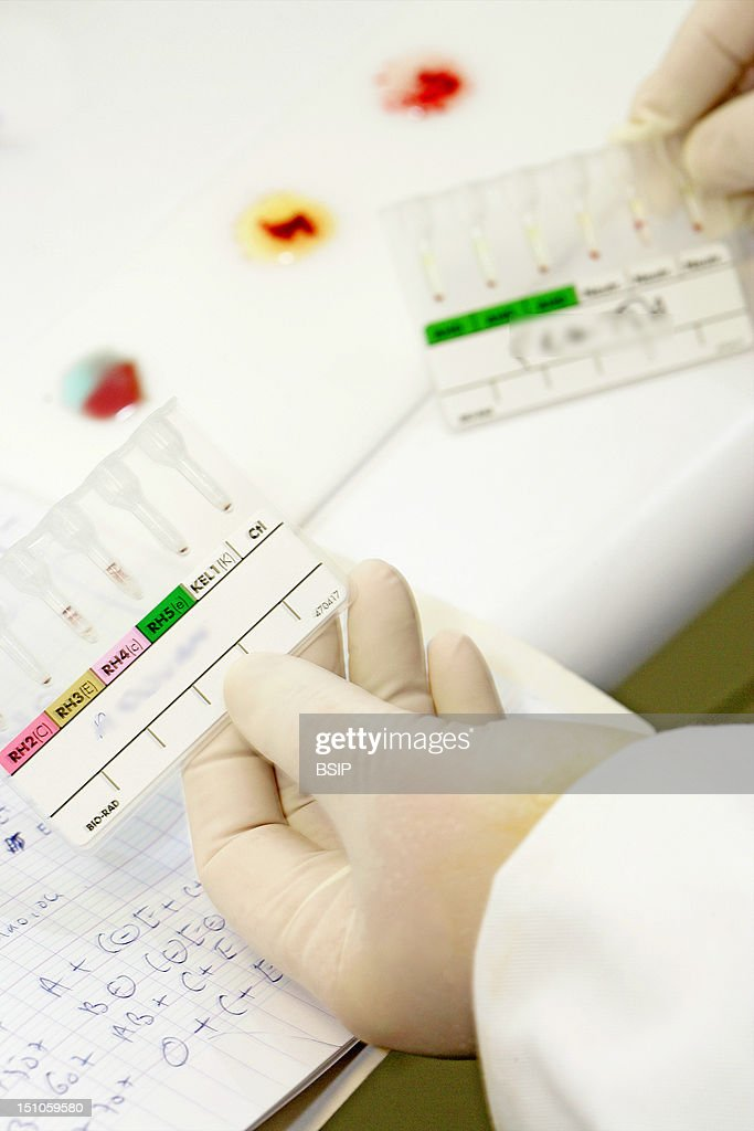 blood group pictures getty images photo essay from laboratory determination of blood group abo on plate abo grouping in