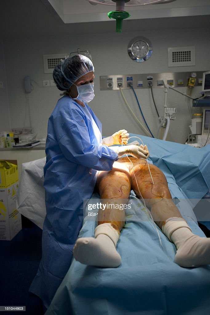 Photo Essay In Aesthetic Surgery Liposuction The Nurse Is Preparing The Canula