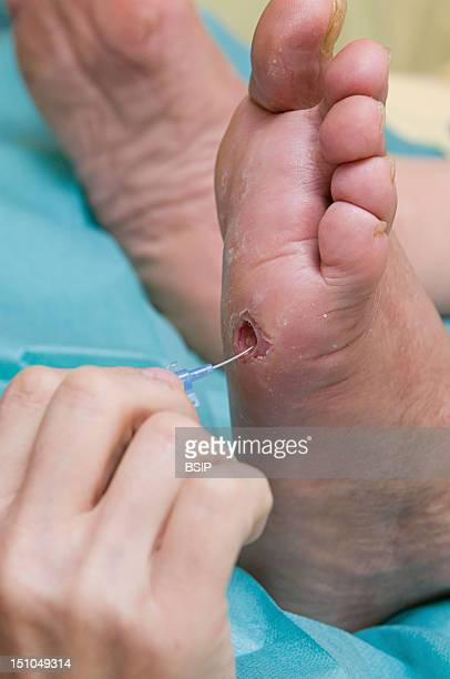 Photo Essay In The Department Of Diabetology At Saint Louis Hospital Paris France Diabetic Foot Ulcer