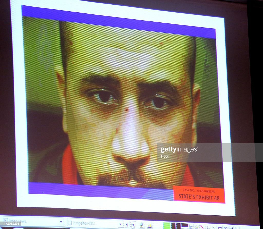 A photo of George Zimmerman taken at the Sanford police station on the night of the Trayvon Martin shooting is projected for the jury during the 16th day of his trial in Seminole circuit court July 1, 2013 in Sanford, Florida. Zimmerman is charged with second-degree murder for the February 2012 shooting death of 17-year-old Trayvon Martin.