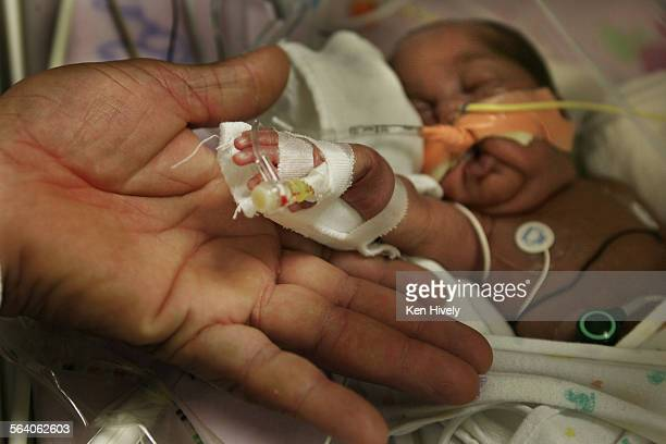 Photo of premie Haezxler Galeas at Childrens Hospital in Los Angeles with fathers hand Jose Galeas born 1lb 9oz 1 1/2 months old Story on high rate...