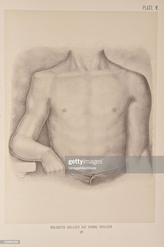 Photo representing a dislocated shoulder on the left and a normal shoulder on the right 1899 From 'The Treatise of the Human Anatomy and Its...