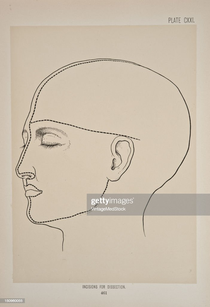 Photo representing lines of incision for dissection on the face 1899 From 'The Treatise of the Human Anatomy and Its Applications to the Practice of...