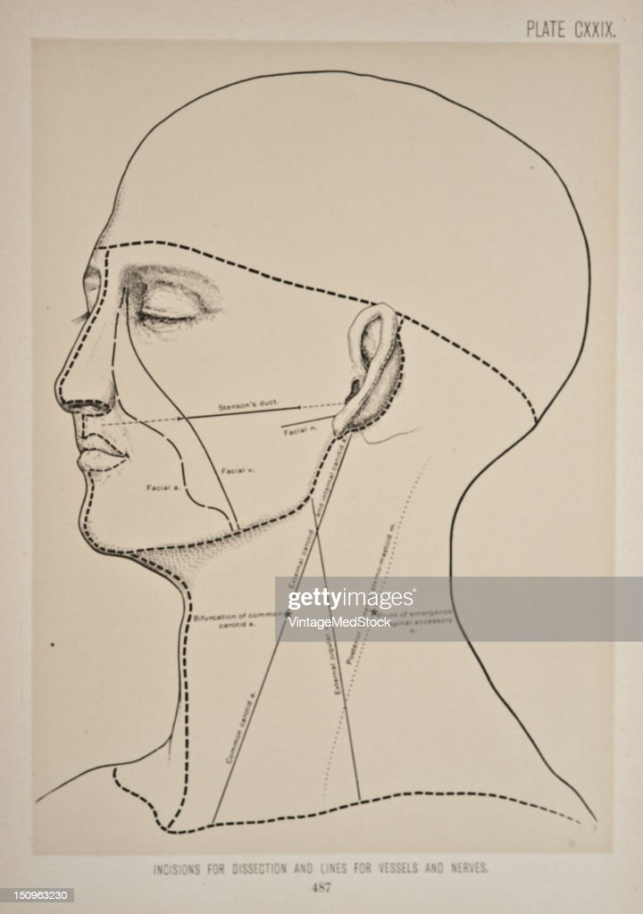 Photo representing lines of incisions for dissection on the face specifying where vessels and nerves are located 1899 From 'The Treatise of the Human...