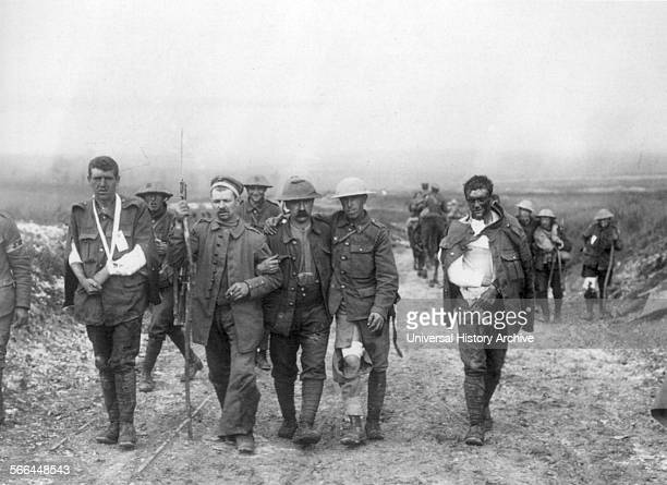 Photograph of the Wounded British Soldiers at the Battle of the Somme Dated 1916