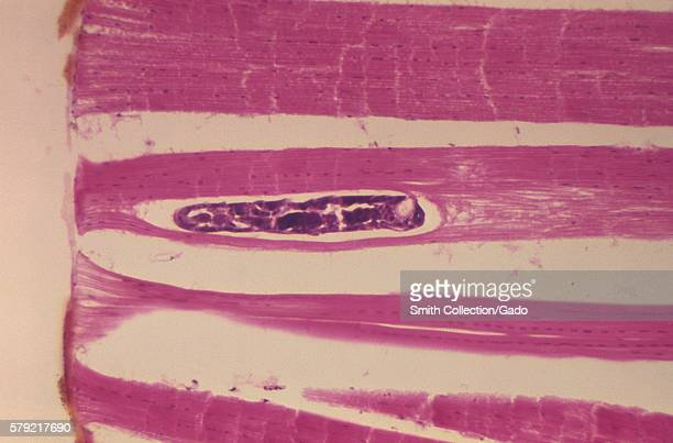 A photomicrograph revealing the histology of Onchocerca volvulus developing in a Black Fly Simulium ochraceum 1978 O volvulus the filarial parasite...