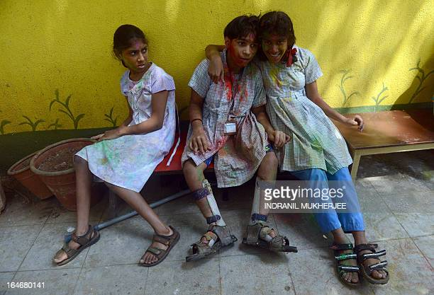 Physically challenged Indian girls smeared with gulalcoloured powder pose during Holi celebrations at a special school Society for the Edcuation of...