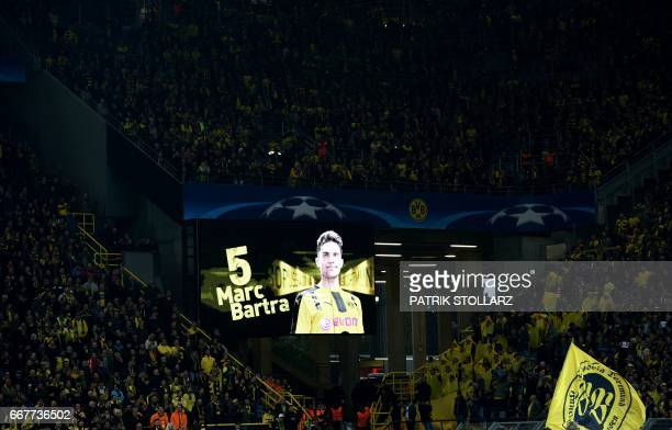 TOPSHOT A picture of Dortmund's Spanish defender Marc Bartra who was injured during an attack is screened ahead the UEFA Champions League 1st leg...