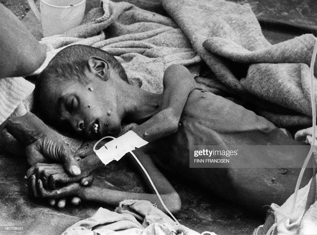Picture taken in November 1984 in Ethiopia of a child suffering of starvation treated in a medical center Developed countries and ONG started a big...