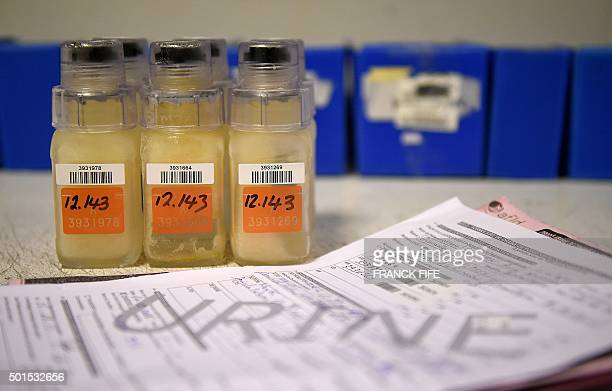 A picture taken on December 15 2015 shows urine samples about to be analyzed at the French national antidoping laboratory in ChatenayMalabry outside...