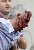A picture taken on July 24 2013 shows wounded train driver Francisco Jose Garzon Amo evacuated by two men after the train accident near the city of...