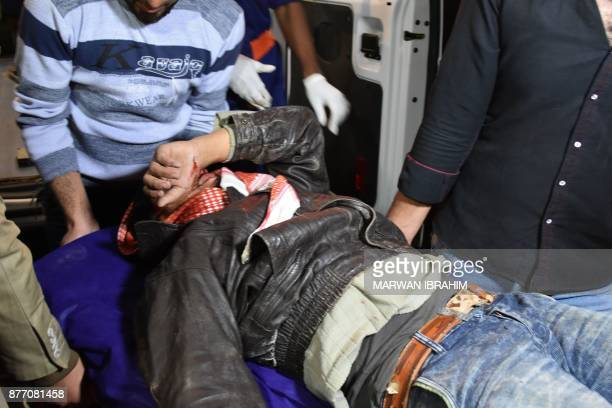 A picture taken on November 21 2017 shows one of the victims of a suicide car bomb attack in the northern Iraqi town of Tuz Khurmatu near Iraq's...