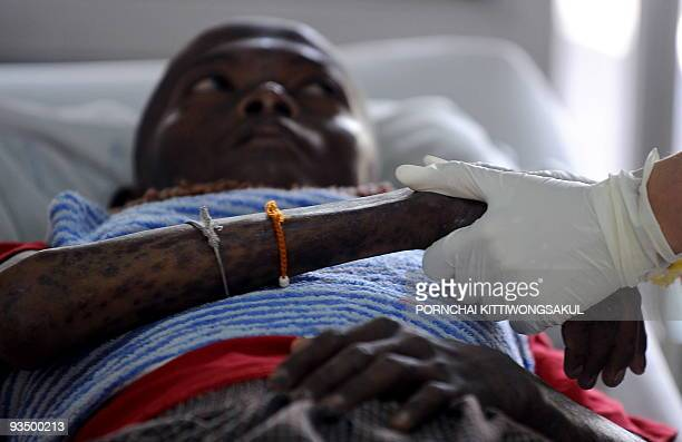 A picture taken on November 29 2009 shows a Thai volunteer holding the hand of an AIDS patient as he recieves medical treatment at a Buddhist Temple...