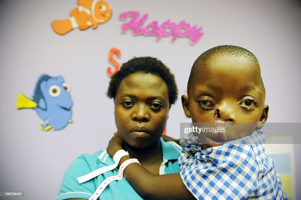 Pietros Mokunke and his mother, Maria, at the Charlotte Maxekehospital on April 10, 2013, in Johannesburg, South Africa. The Smile Foundation sponsored the operation 5-year-old Pietros needed to mend his hare-lip and split pallet, which caused him severe facial deformity. The foundation has a Teddy Bear up for auction on their Facebook page, to raise funds for Pietros' next operation, which will restore the rest of his face.