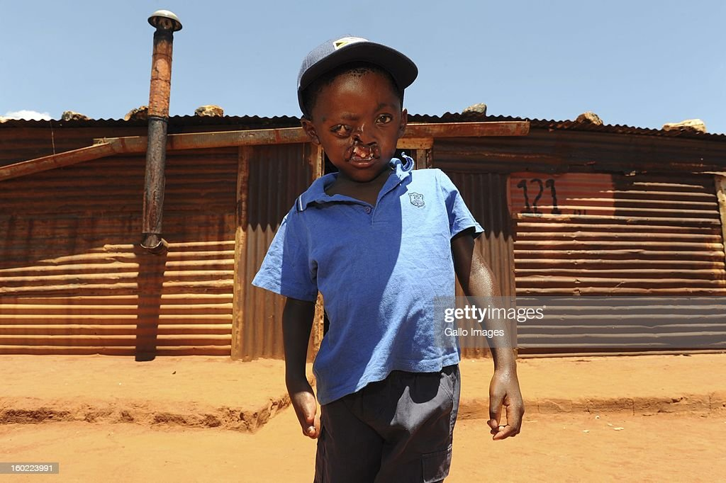 Pietros Mokunke at his home in the Goedgevonden-township on January 24, 2013, in Ventersdorp, South Africa. Pietros was born with a hare-lip and split pallet, his right hand and both feet are also severely deformed. Sadly his parents are unable to afford corrective surgery.