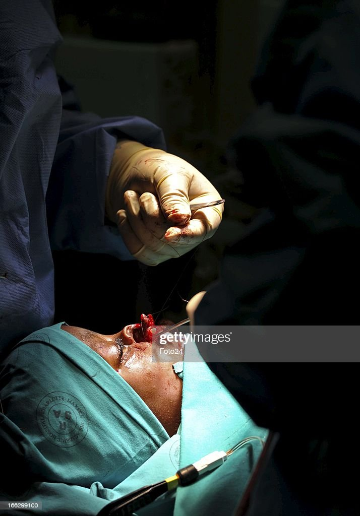 Pietros Mokunke being operated on by doctors at the Charlotte Maxeke hospital on April 2, 2013, in Johannesburg, South Africa. The Smile Foundation sponsored the operation Pietros needed to mend his hare-lip and split pallet.