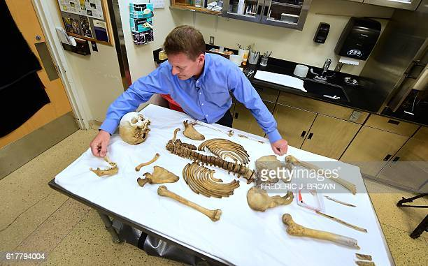 Pima County medical examiner Dr Gregory Hess stands over a table with the laid out skeletal remains of a person who died trying to cross the USMexico...