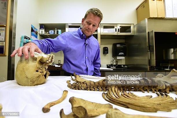 Pima County medical examiner Dr Gregory Hess touches the skull of a skeleton laid out of bones found from a person who died trying to cross the...