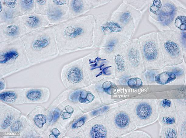 Plant cells stained for nuclei with one cell in metaphase