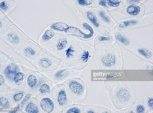 Plant cells stained for nuclei with one in anaphase