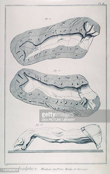 Plate showing plaster casting two halves of the mold of an arm and creation Engraving from Denis Diderot Jean Baptiste Le Rond d'Alembert...