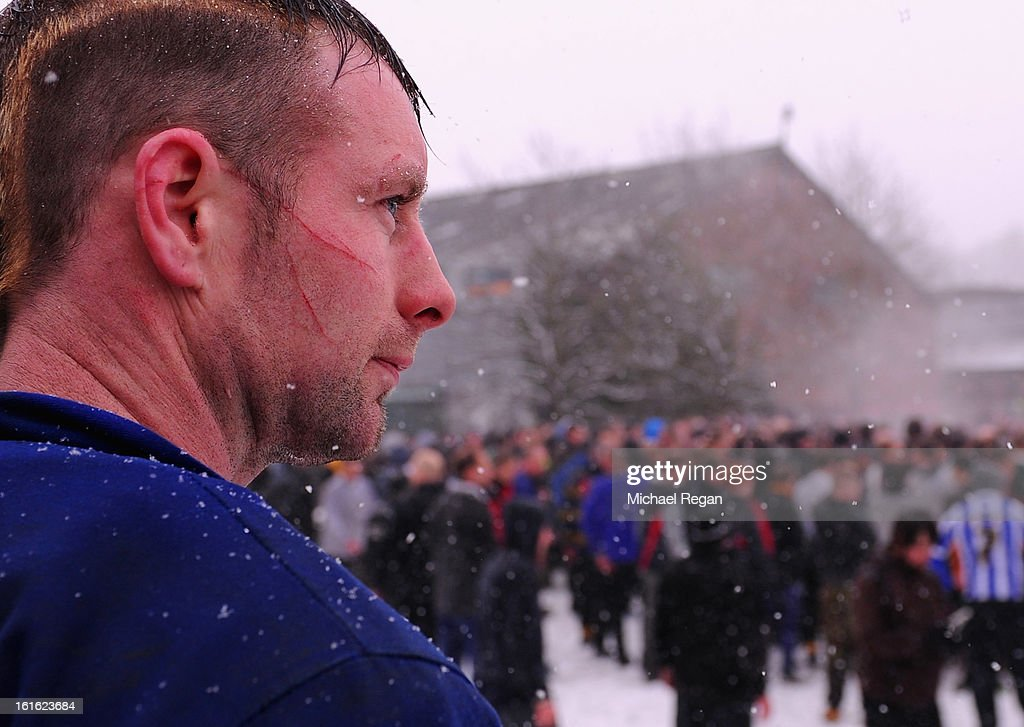 A player's face is scratched as rival teams the 'Up'ards and Down'ards' battle for the ball in the river during the annual Ash Wednesday 'no rules' football match on February 13, 2013, in Ashbourne, England. First played in the 17th Century between teams from opposite ends of the Derbyshire town, hundreds of participants aim to get a ball into one of two goals that are positioned three miles apart at either end of Ashboune. The match starts on Shrove Tuesday and can last until 10 PM. If a goal is scored before 6 PM, then a new ball is 'turned up' again and a new game started. If the goal is after 6 PM then the game ends for that day and continues into the next day - known as Ash Wednesday.
