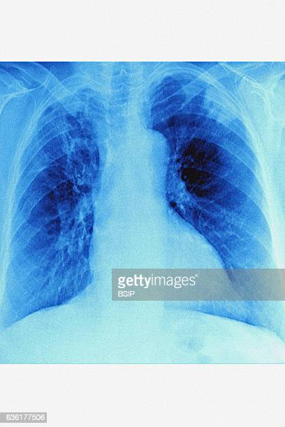 Pneumonia caused by a hospital acquired bacterian infection seen on a frontal chest xray