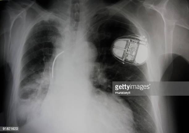 pneumonic und Tempo Kaffeemaschine-Herz Batterie Zelle Lunge