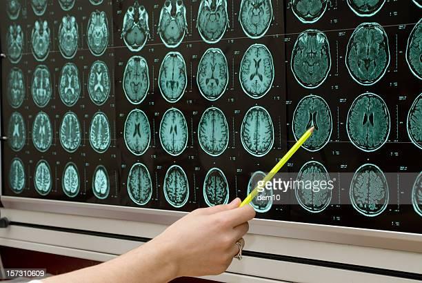 Pointing at MRI monitor screens