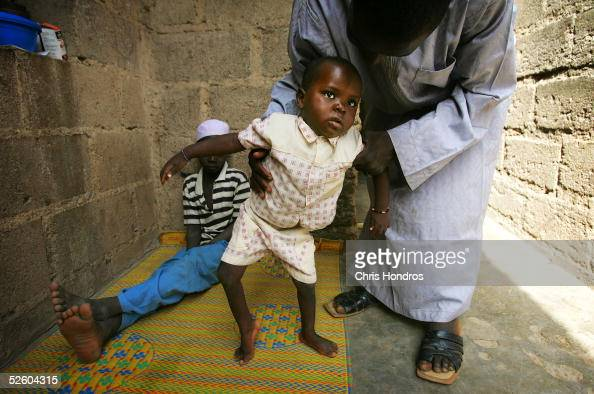 Polio sufferer Umar Aminu is held by one of his brothers April 8 2005 in Kano Nigeria Polio a disease that health workers once had hoped to eradicate...