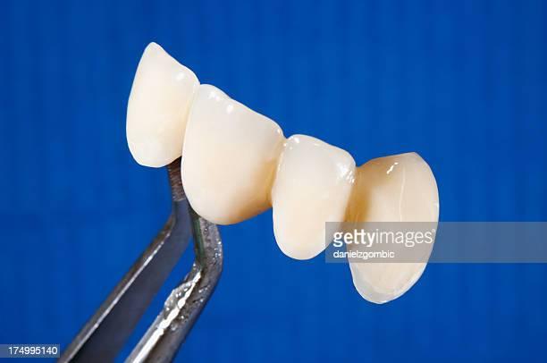 Porcelain crowns, dentistry bridge