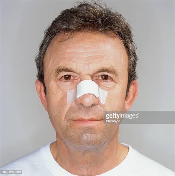 portrait of a man with his nose bandaged