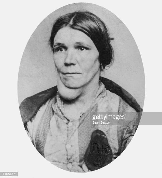 A portrait of a woman suffering from goitre circa 1880 She is wearing a badge which denotes her status as a workhouse inmate