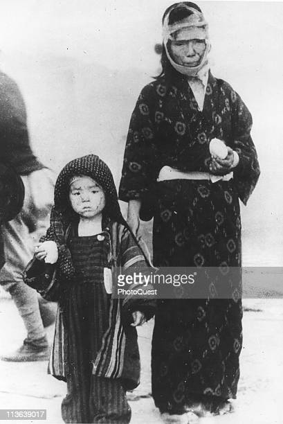 Portrait of an unidentified and injured mother and son as they pose with boiled rice balls provided by emergency services the day after the atomic...