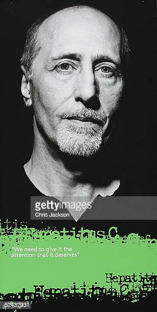 A portrait of Former Beach Boy David Marks who suffered from hepatitis C is seen after it was unveiled at a photographic exhibition of largescale...