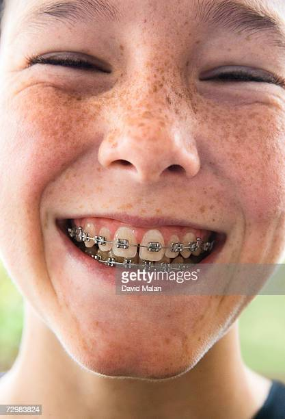 Portrait of girl in braces smiling, close up, close-up, portrait