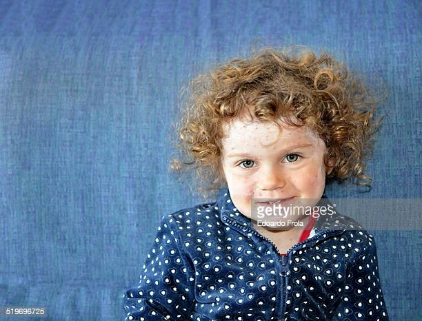 Portrait of little blonde girl with chickenpox.