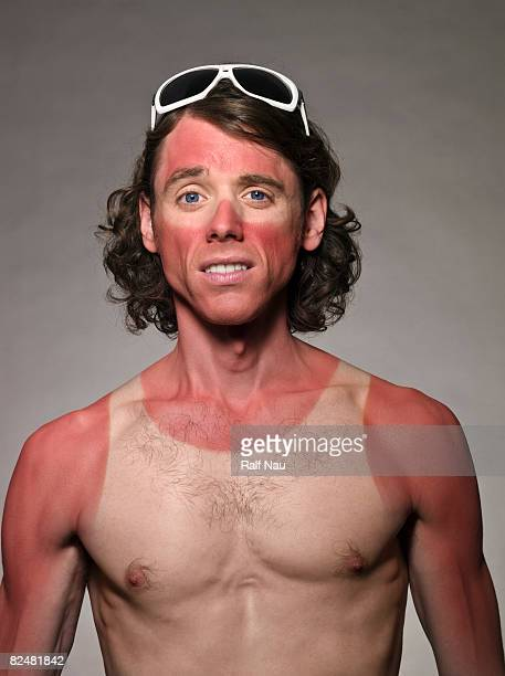 Portrait of male with bad sunburn