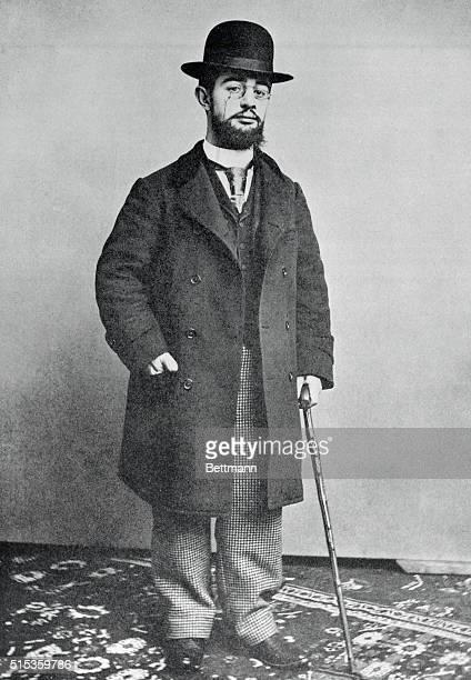 Portrait of ToulouseLautrec French painter